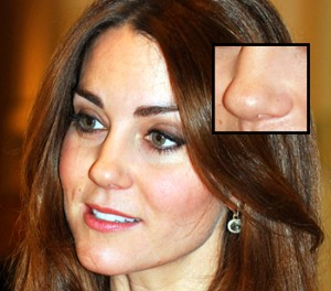kate-middleton-nose-most-requested-for-nose-job-gi-300x264